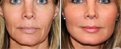 NonSurgicalFaceLifts2
