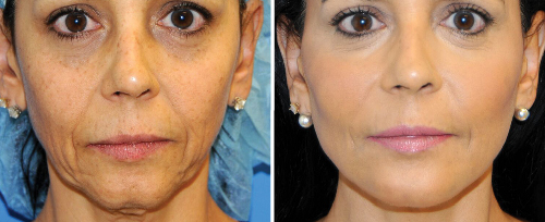 NonSurgicalFacelifts