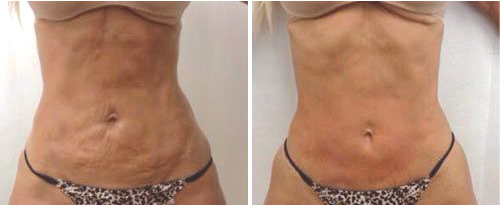 NonSurgicalSkinTightening
