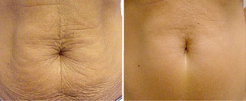 NonSurgicalSkinTightening2