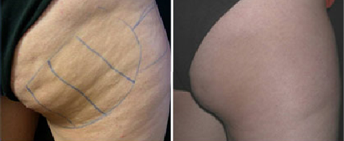 NonSurgicalSkinTightening3