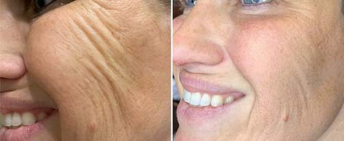 ForeverYoung_BeforeAfter_Fibroblast_1