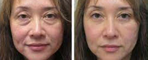 ForeverYoung_BeforeAfter_Fibroblast_2
