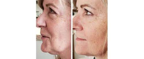 ForeverYoung_BeforeAfter_Fibroblast_3