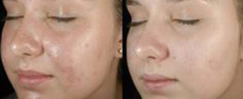 ForeverYoung_BeforeAfter_SkinPeel_1
