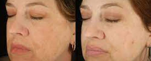 ForeverYoung_BeforeAfter_SkinPeel_2