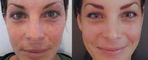 ForeverYoung_BeforeAfter_SkinPeel_3